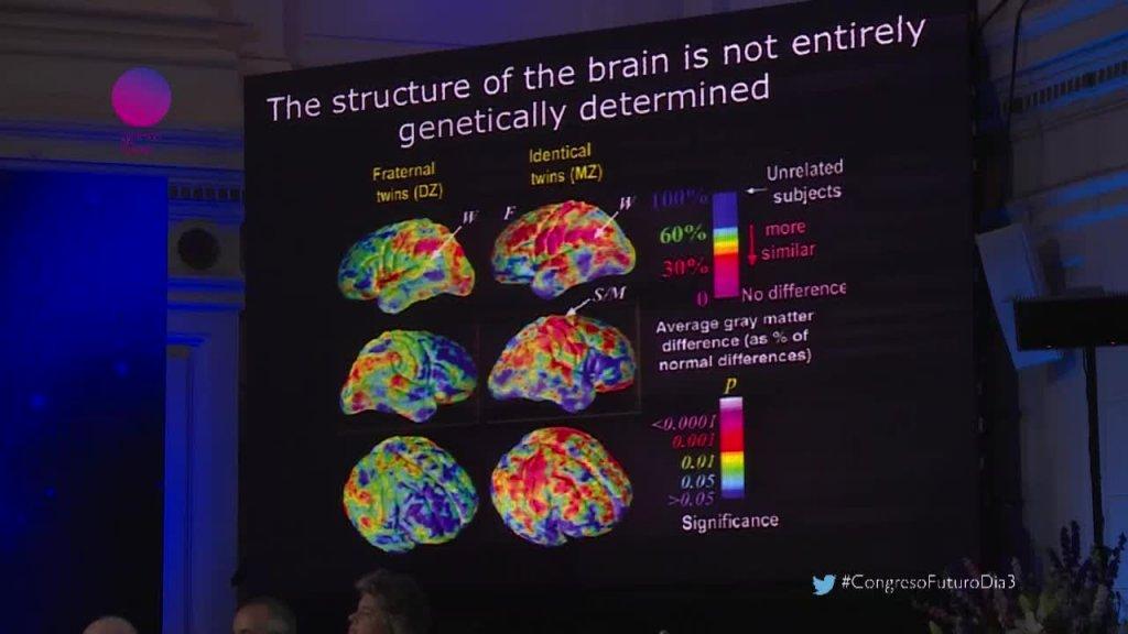 La sorprendente evolución de nuestro cerebro